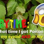 Storytime: That time I got Poison Ivy on my eyelid and in my ear!